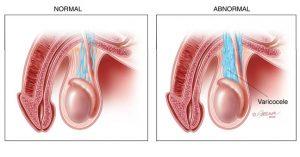anatomy_varicocele