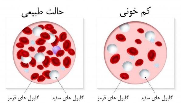 راههای درمان کم خونی شدید, رفع کم خونی شدید, علائم کم خونی شدید