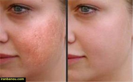 عوارض لیزر موهای صورت