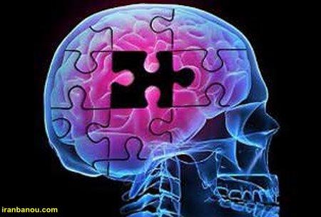 درمان بیماری آلزایمر