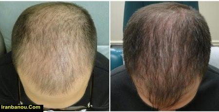 درمان قطعی ریزش مو در مردان