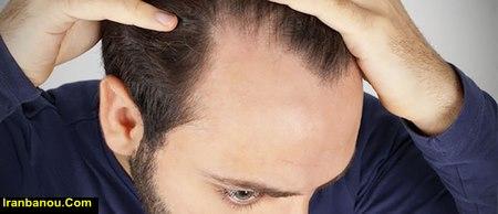 درمان ریزش مو مردان در طب سنتی