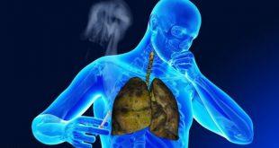 عوارض سیگار بر ریه