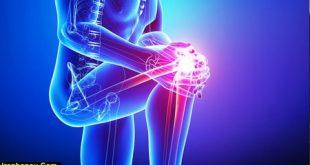 مواد غذایی مفید برای زانو درد