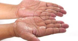 درمان خشکی پوست پا