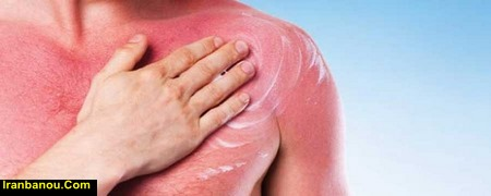 درمان لکه افتاب سوختگی