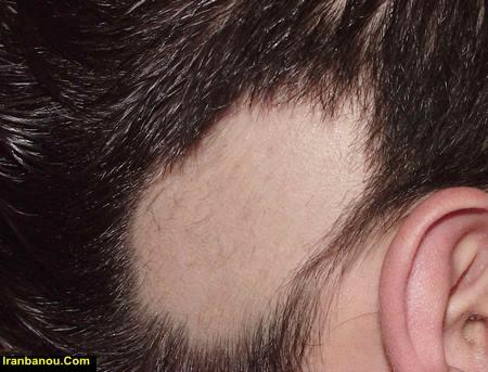 ریزش مو در چه سنی قطع میشود