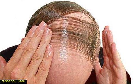 ریزش مو در مردان تا چه سنی ادامه دارد