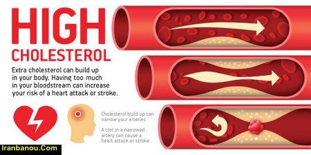 غذاهایی برای کاهش کلسترول