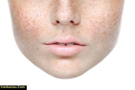 درمان قطعی لک صورت با طب سنتی