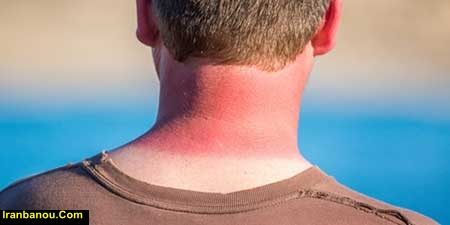 علائم آفتاب سوختگی