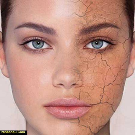 مقاله در مورد پوست