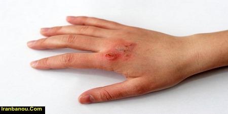 درمان سوختگی با اتو