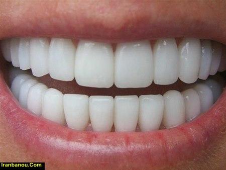 سفید کردن دندان در مطب