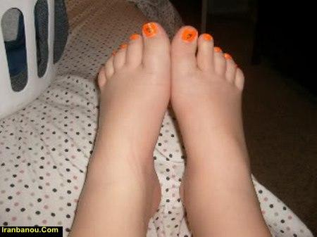 ورم یک پا در بارداری