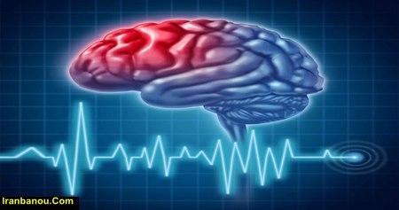تحقیق در مورد رشته مغز و اعصاب