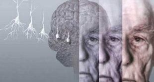 زمان مرگ بیماران الزایمری