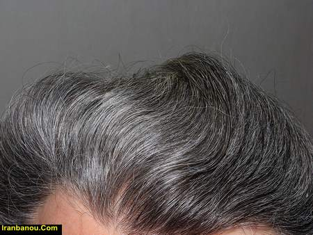سفیدی مو درمان
