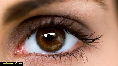 دختر چشم دو رنگ