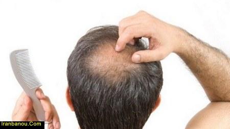 نشانه های ریزش موی ارثی