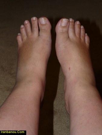 درمان ورم پا در اثر ضربه
