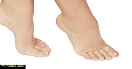 درمان ورم پا در سالمندان