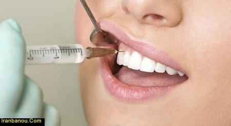 علت پوسیدگی دندانهای جلو