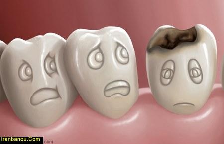 پوسیدگی بین دو دندان
