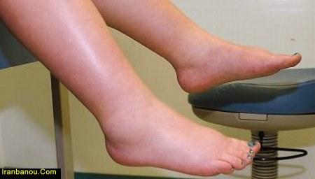 درمان ورم پا در طب اسلامی
