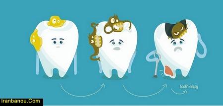 درمان پوسیدگی دندان طب سنتی