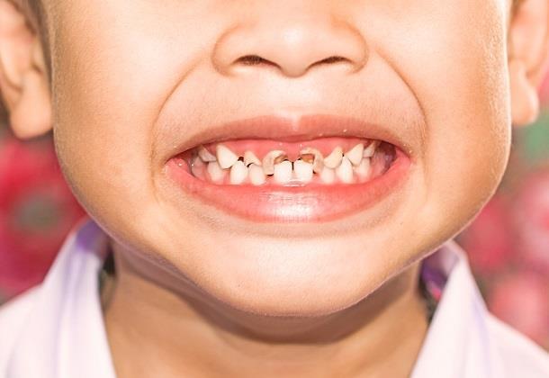 ترمیم دندان کودکان با بیهوشی