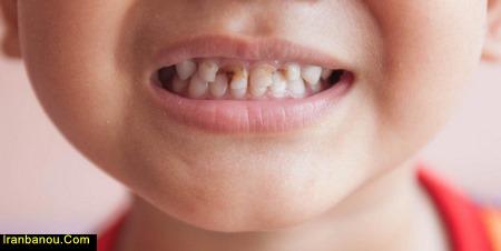 درمان پوسیدگی دندان کودک یک ساله