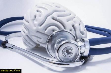 مراحل بیماری آلزایمر