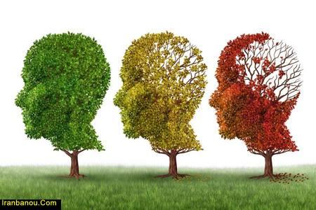 آلزایمر شدید