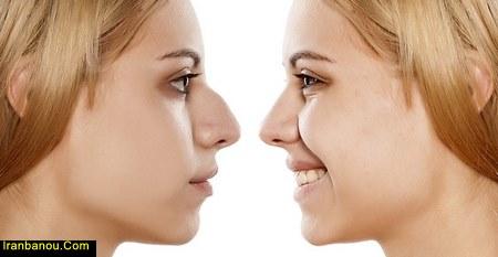 تغذیه بعد از عمل بینی