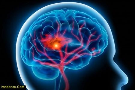 درمان نرسیدن اکسیژن به مغز