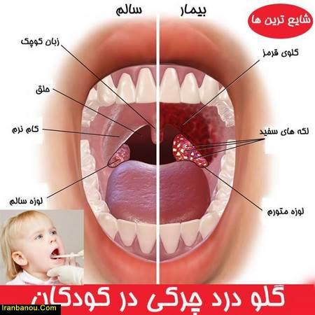 درمان گلو درد با دارو