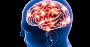 راه درمان نرسیدن خون به مغز