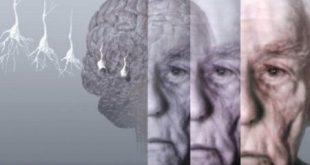 آلزایمر کشنده