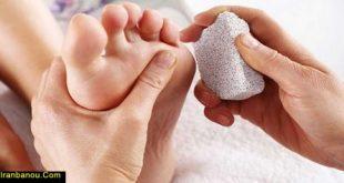 درمان میخچه پا در بارداری