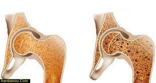 درمان قطعی پوکی استخوان