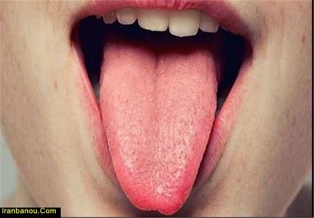 علت قرمزی زبان در سالمندان