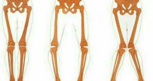تشخیص پای پرانتزی