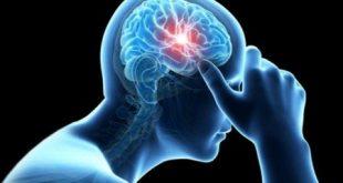 درمان دارویی کوچک شدن مغز