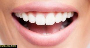 تقویت لثه برای دندان مصنوعی