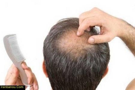 شامپو برای جلوگیری از ریزش مو