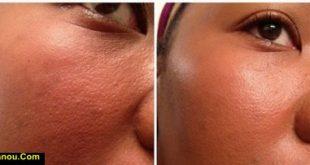 بستن دائم منافذ پوست