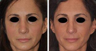 درمان ورم بینی بعد از ضربه