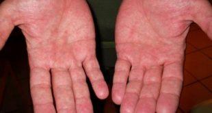 درمان خانگی عرق کف دست