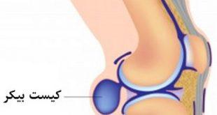 کیست بیکر زانو و درمان آن